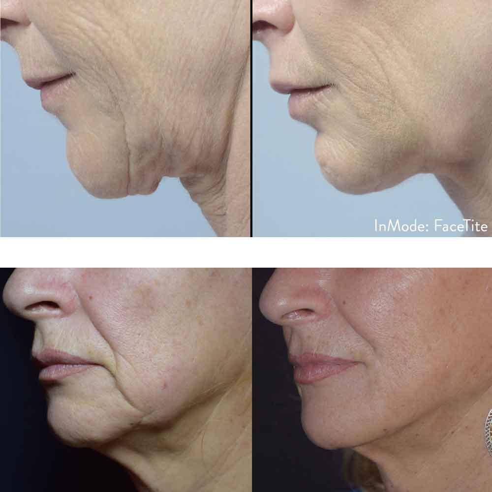 FaceTite | Body Renew by Prestige